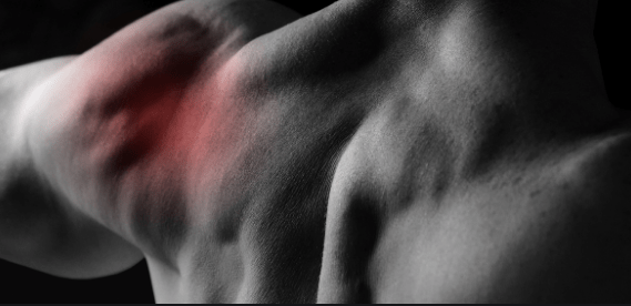 What Need To Know About Weightlifters Shoulder